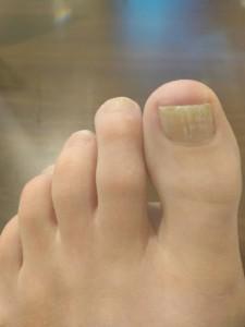 laser toe fungus treatment mississauga oakville waterloo
