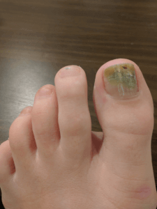 laser toe fungus treatment mississauga oakville waterloo