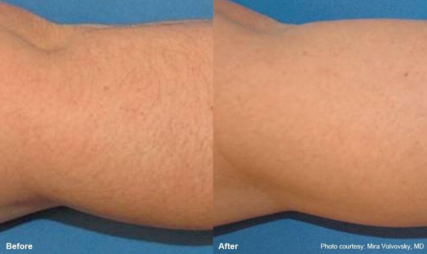Laser Hair Removal Lighttouch Med Spa