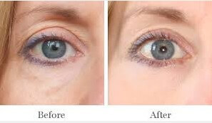 dark Circles Before and after