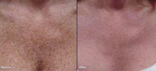 Skin Pigmentation Lighttouch Med Spa
