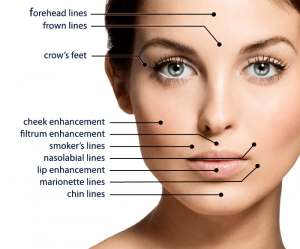 injectable fillers oakville