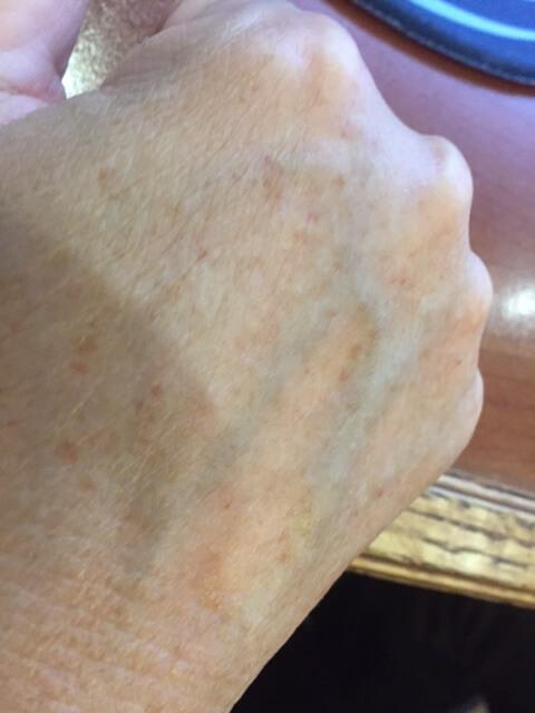 skin pigmentation mississauga