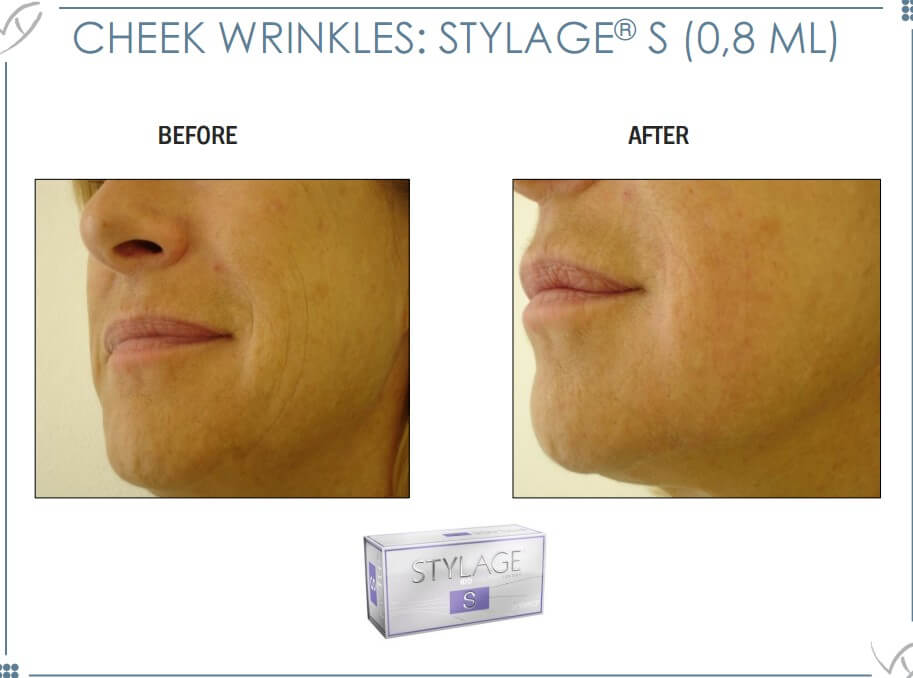 Sylage Filler3 before and after