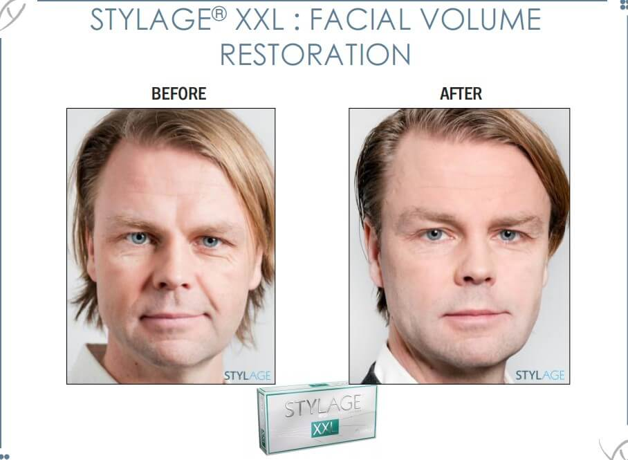 Sylage before and after 6