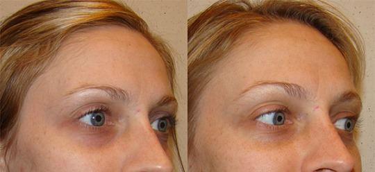 dark circles under eyes oakville