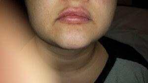 lip injections oakville