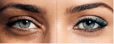 dark circle eye treatment mississauga waterloo oakville