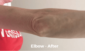 Elbow-after