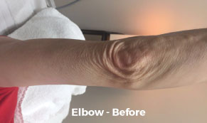 Elbow-before