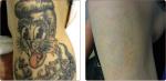 Laser Tattoo Remova...