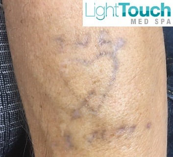 Laser Tattoo Removal Cost in Orlando   LightTouch Med Spa