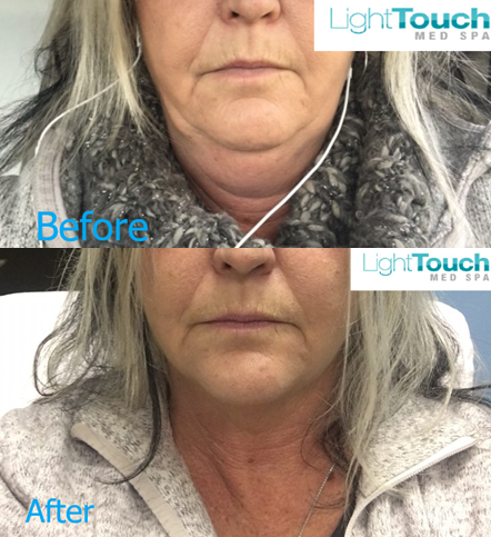 Kybella Before/After