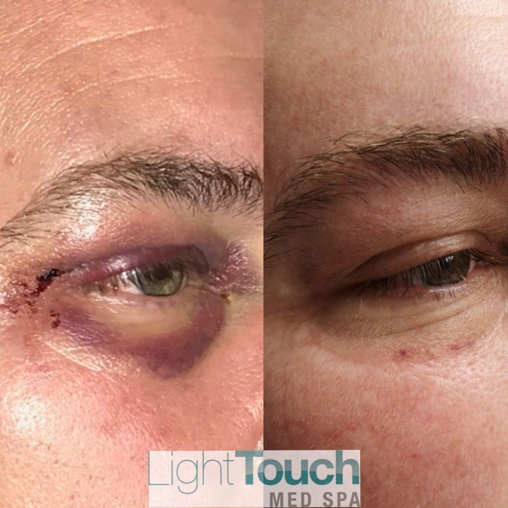 黑眼圈治疗