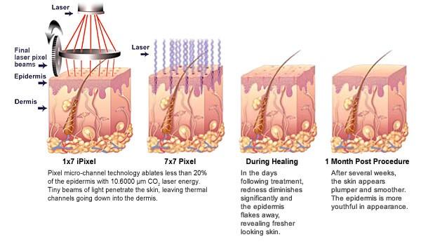 PIXEL 激光皮肤回春机去除-减少疤痕