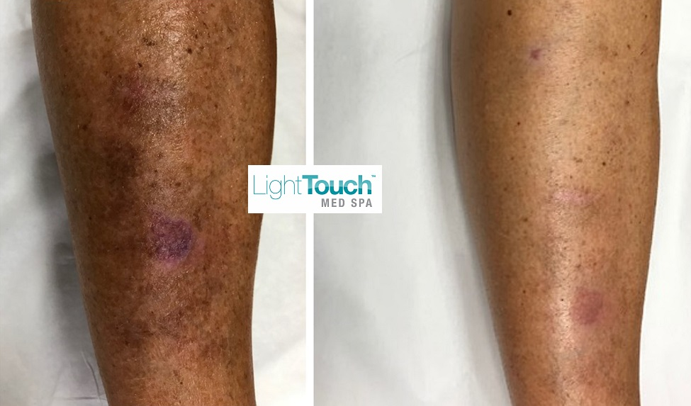 Leg Vein Treatment Before After Treatment